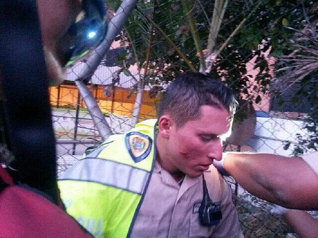 Funcionario del #cpnb  Lesionado de Traumatismo a nivel facial por coheton  lanzado por manifestante en Chacaito. Foto: @CPNB_VE. Futente: Click aquí
